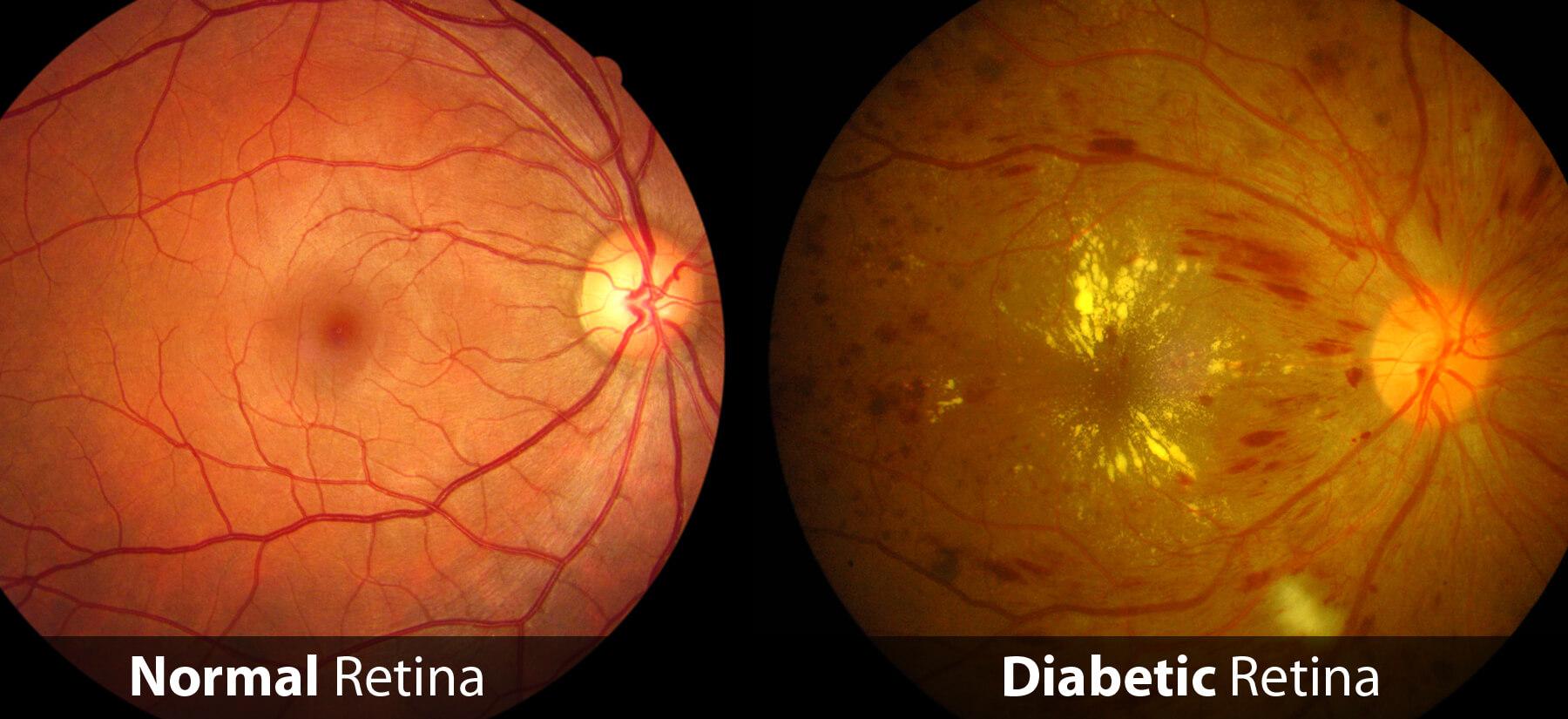 Diabetic Retinopathy Example
